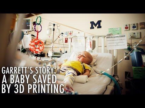 Une bébé sauvé par la 3D