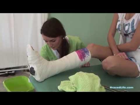 Emily short leg cast cutaways