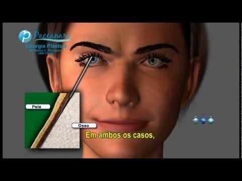 LIFTING FRONTAL - Paccanaro Cirurgia Plástica