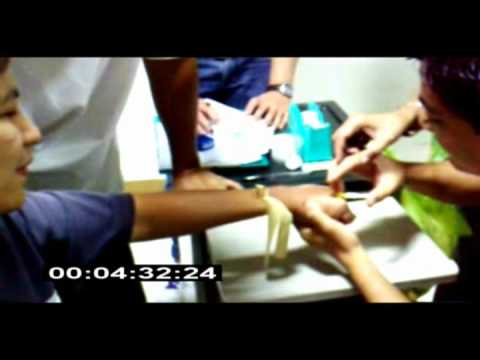 how to put iv cannula