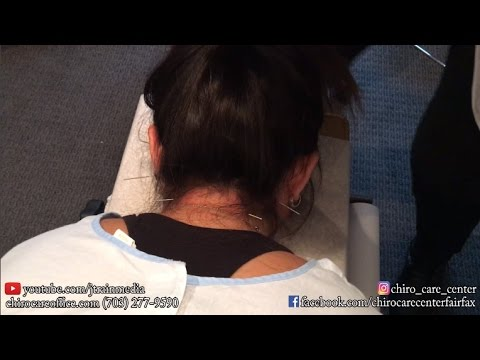 Acupuncture Therapy on a First Time Acupuncture Patient