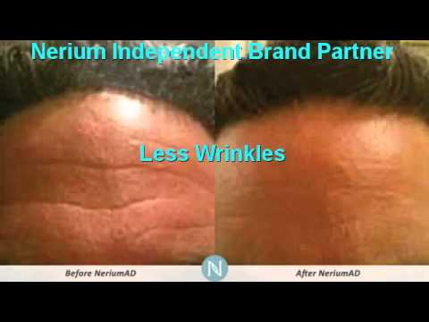 Botox In A Bottle | Get Your Nerium Today!  | 210-305-7833