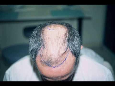 Implant capillaire traitement calvitie chute des cheveux for Prix traitement remontee capillaire