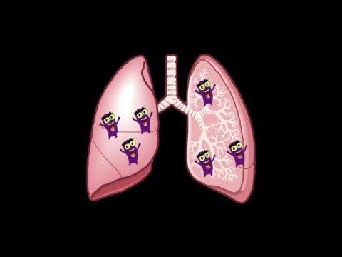 肺結核衛教動畫(法語版)