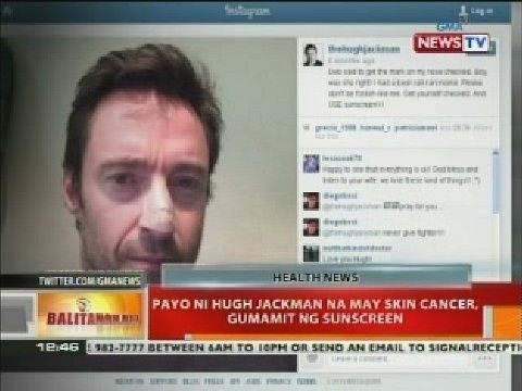 BT: Payo ni Hugh Jackman na may skin cancer, gumamit ng sunscreen