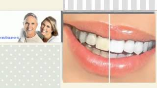 [Dental Braces In Langley] Video