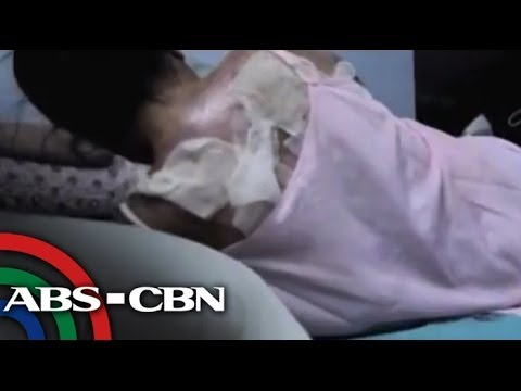 Justice sought for Pinay doused with boiling water