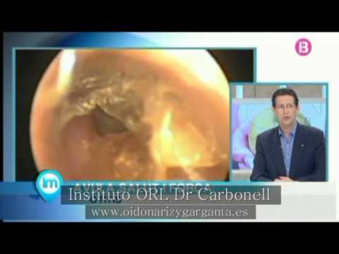 La otitis externa, ¿es más frecuente en niños?