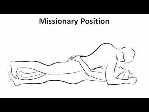 Missionary position technique