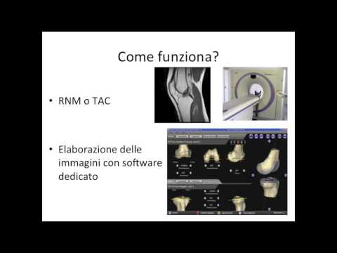 L'intervento di protesi di ginocchio