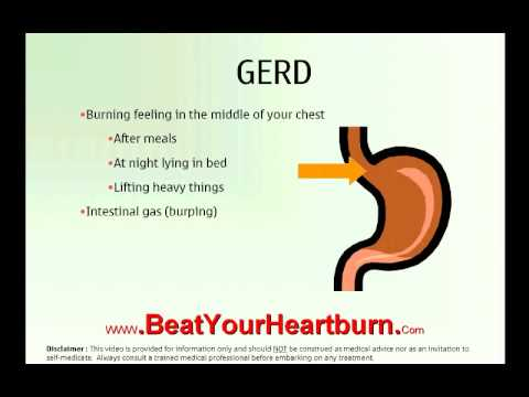 Heartburn Implantation