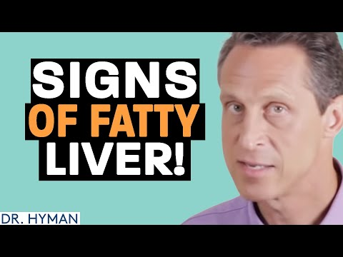 House Call: Do You Have a Fatty Liver?