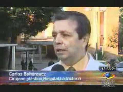 Hospital La Victoria - Cirugía Estética  Caracol tv noticia cirugias.wmv