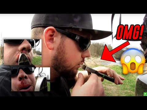 Angler Removes Fishing Hook From His Lip