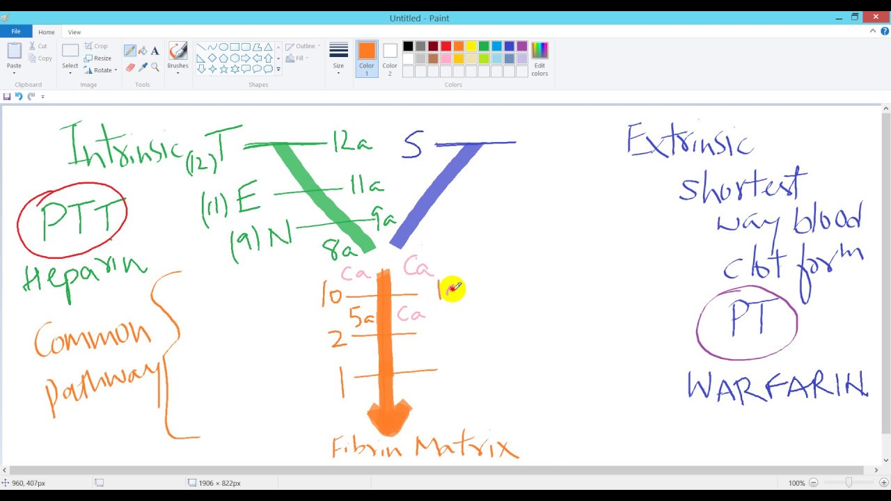 Coagulation Process  Easiest Y Diagram And Mnemonic For Intrinsic  Extrinsic And Common Pathways