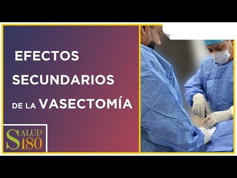 Efectos secundarios de las vasectomía
