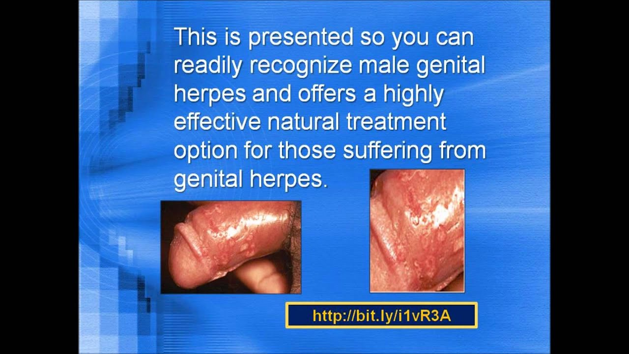 MALE GENITAL HERPES Pictures Photos - YouTube