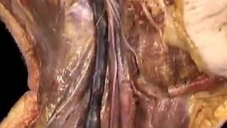 4-8-12 Glossopharyngeal and vagus nerves (cranial nerves IX, X)