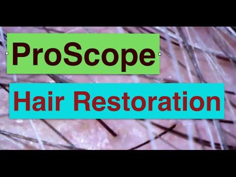 ProScope lenses on hair and scalp