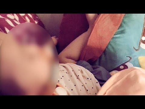 台中1歲女童顱內出血 母懷疑保母施虐 20190622公視晚間新聞