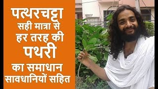 How To Remove Gallbladder Stone Naturally In Hindi