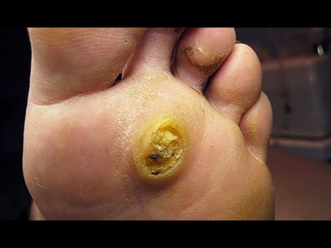 Massive plantar wart! at home removal attempt.