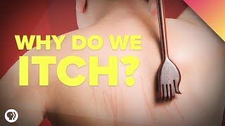 Why Do We Itch?
