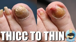 CRAZY THICK NAIL TRANSFORMATION!!! ***BEFORE & AFTER***