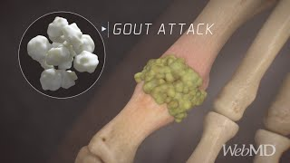 What Happens During a Gout Attack | WebMD