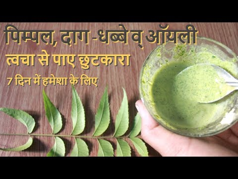 Pimple, Daag- Dhabbe व Oily Skin से पाए छुटकारा पाए हमेशा के लिए- How To Remove Pimple, Pimple Marks