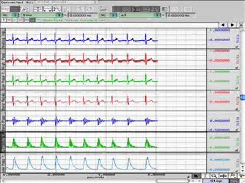 BSL BME QRS Detection