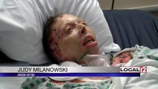 Woman set on fire by ex-boyfriend speaking out