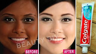 I Applied Toothpaste On My Skin & See What Happened │ 7 Amazing Toothpaste Beauty Hacks│100% Working