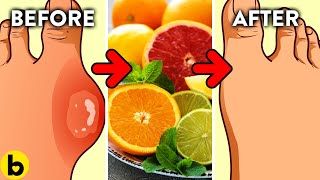 Have GOUT? Eat These 6 Foods And STAY AWAY From These 4 Video HD
