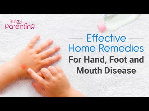 8 Effective  Home Remedies for Hand, Foot, and Mouth Disease in Children