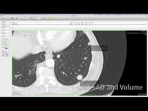 Segmentation with aycan OsiriX PRO