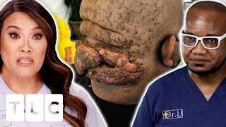 Dr. Lee Needs An Expert's Help To Remove The Bumps On This Man's Head | Dr. Pimple Popper