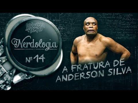 Baixar A FRATURA DE ANDERSON SILVA | Nerdologia 14