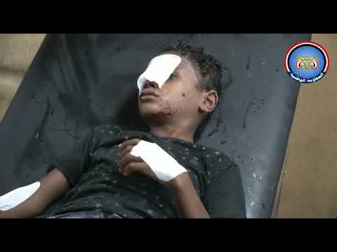 إصابة 4 أطفال بقذائف المليشيات الحوثية في الحديدة
