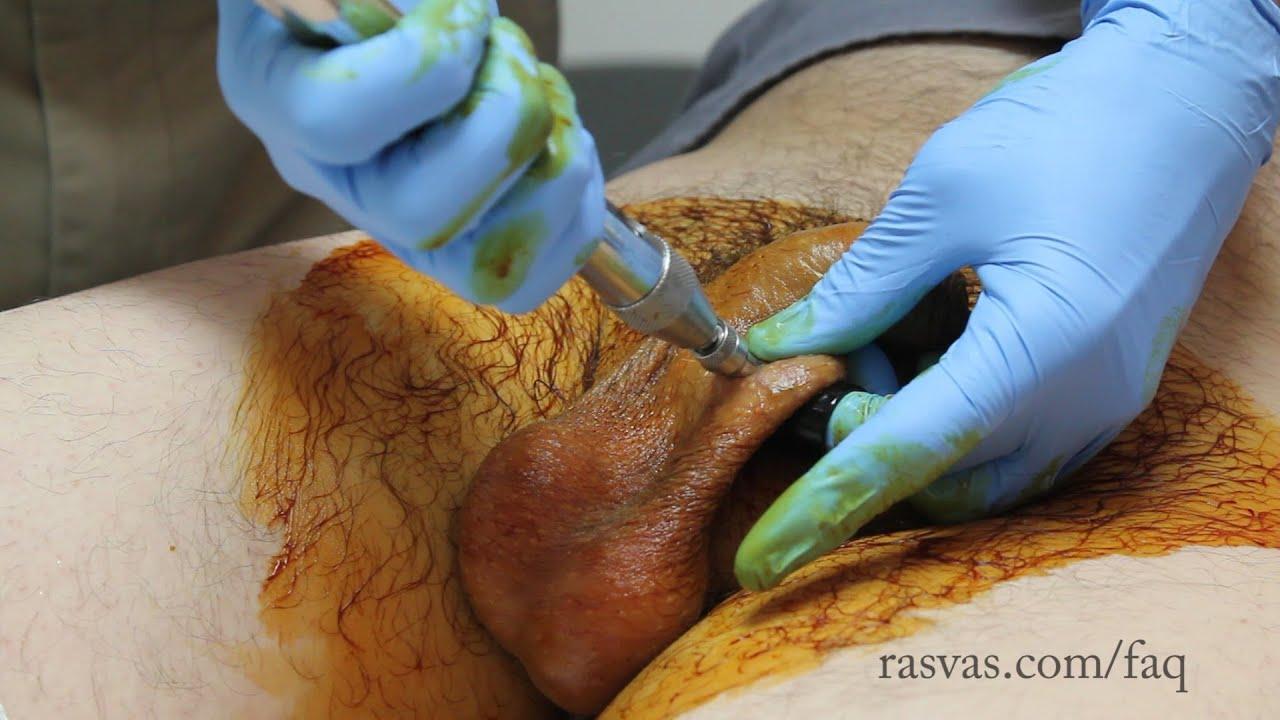 Masturbation after vasectomy