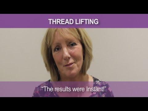 Susan Silhouette Soft thread lifting testimonial