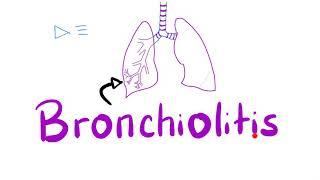 Acute Bronchiolitis, Bronchiolitis Obliterans-Organizing Pneumonia (BOOP) | Pulmonology