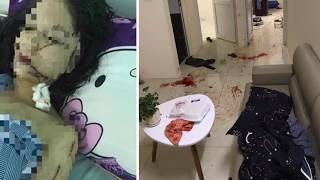 Tin tức 24h - Mâu thuẫn lúc chuyển phòng, 2 cô gái dùng dao kéo rạch mặt nhau