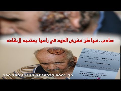 صادم.. مواطن مغربي الدود كايخرج من راسوا يستنجد لإنقاذه