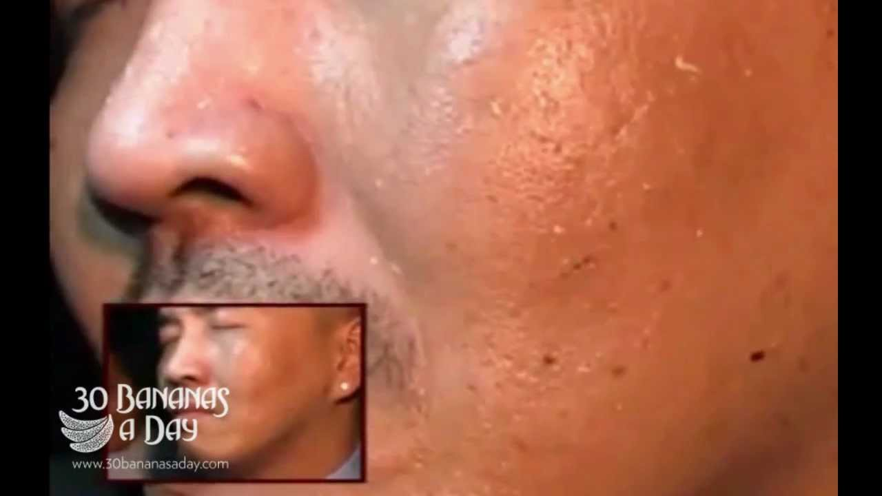 Removing Sinus Worm Parasites From Mans Face Aka Quot The