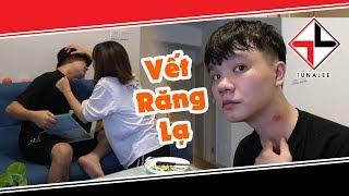 Vết Cắn Yêu Lạ Trên Cổ (Hickey Prank On Girlfriend)   Tuna Lee