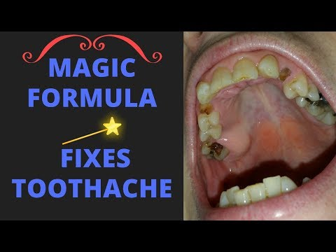 Relieve severe toothache with this magical formula GUARANTEED!