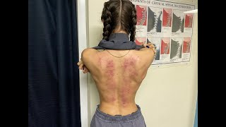 Ballet Dancers TOXIC RELEASE. Patient Surprised by Cracks and Crunches!  Sarasota, FL Chiropractor