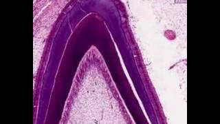 Shotgun Histology Tooth Eruption