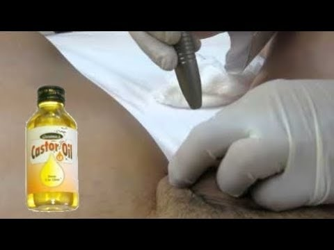 Does Castor Oil Work for Pearly Penile Papules - The Absolute Truth Revealed!
